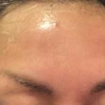 どんどん皮がめくれる|ハイドロキノン とトレチノイン治療記7日目