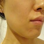 毛穴が少し少なく|自分でする顔のダーマローラー効果経過記7回目