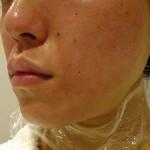 お肌のニキビ跡やクレーター治療のためのダーマペンの頻度の目安