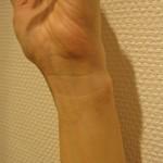 0309-wrist-150x150 - image