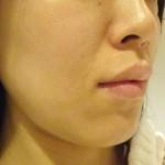 顔全体42日間|ハイドロキノンのみとビタミンC誘導体で全身美白効果経過記