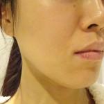顔透明感アップ51日間|ハイドロキノンのみとビタミンC誘導体で全身美白効果経過記