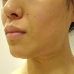 顔の美白結果71日間|ハイドロキノンのみとビタミンC誘導体で全身美白効果経過記