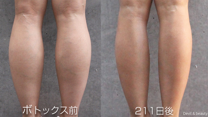 calves-botox-before-211days4 - image