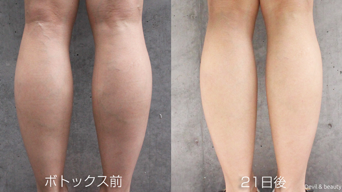 calves-botox-before-21days - image