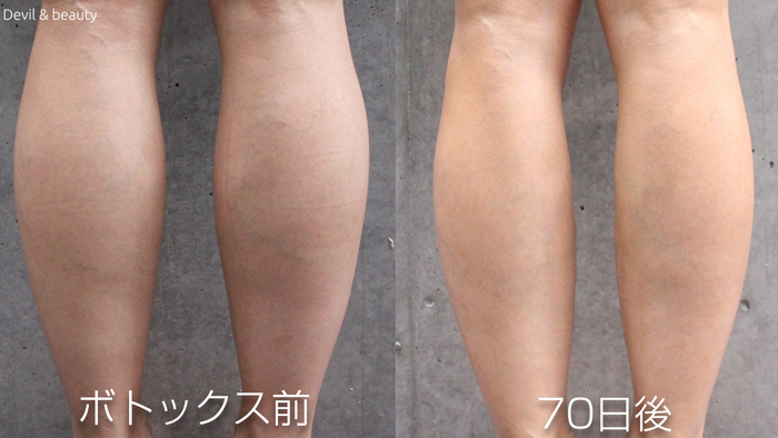 calves-botox-before-70days - image