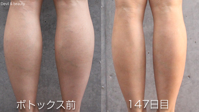 calves-botox-before-day-147 - image