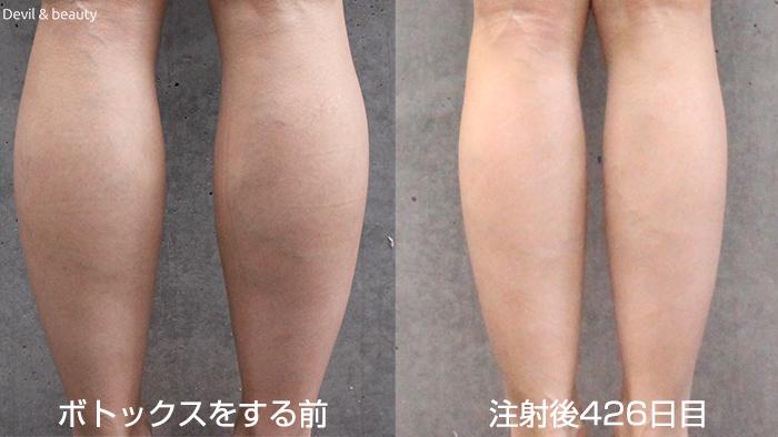 calves-botox-day-426 - image