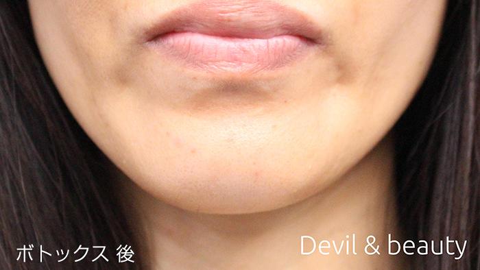 after-botox-chin1 - image