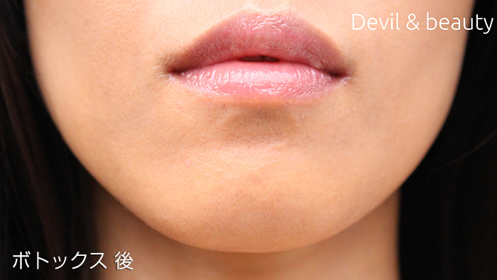 after-botox-chin2 - image