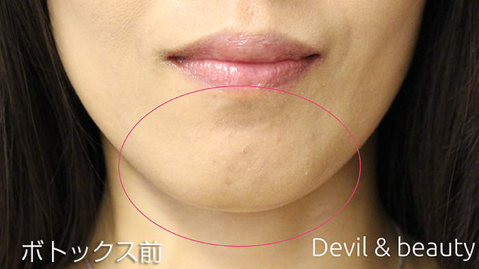 before-botox-chin1 - image
