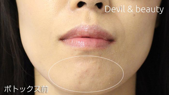 before-botox-chin2 - image
