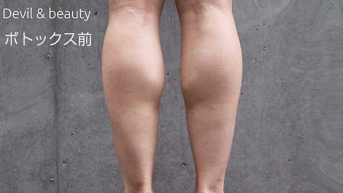 calves-before4 - image
