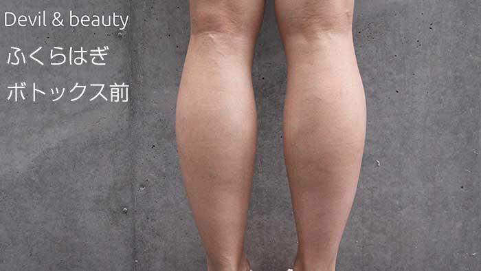 calves-before5 - image