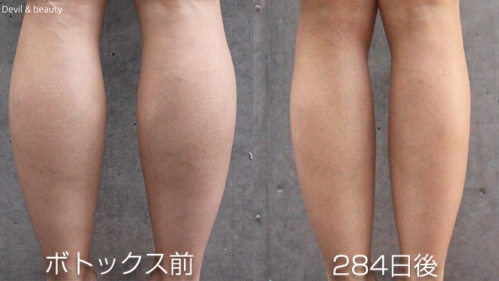 calves-botox-before-284days - image