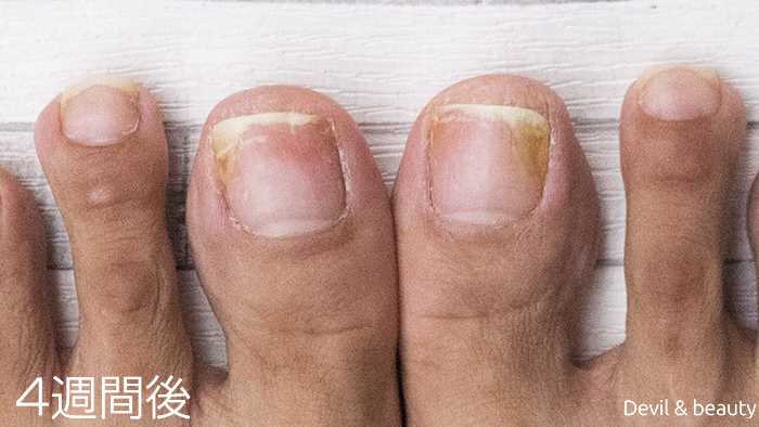 after-use-clear-nail-shot-4weeks - image