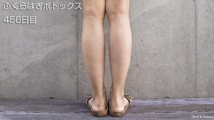 calves-botox-456days-2 - image