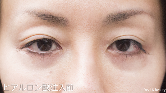 before-hyaluronic-acid-injection-under-the-eyes-1 - image