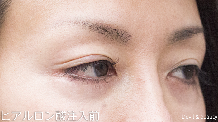 before-hyaluronic-acid-injection-under-the-eyes-2 - image