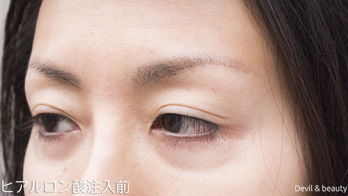before-hyaluronic-acid-injection-under-the-eyes-3 - image
