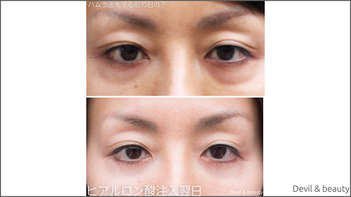 eyes-under-hamura-method-and-after-hyaluronic-acid-treatment-1 - image