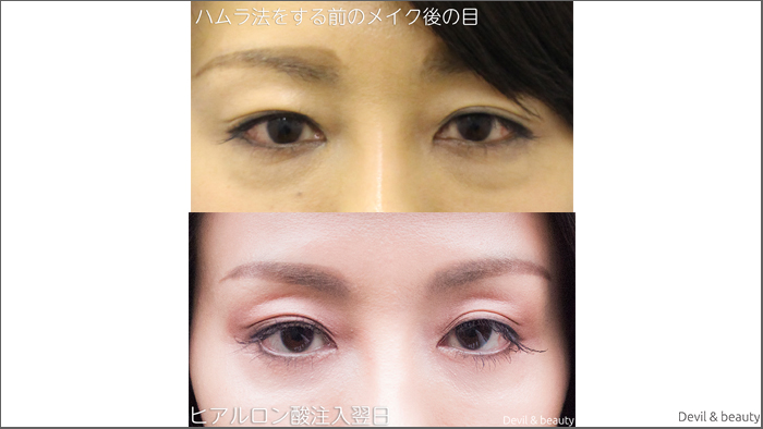 eyes-under-hamura-method-and-after-hyaluronic-acid-treatment-2 - image