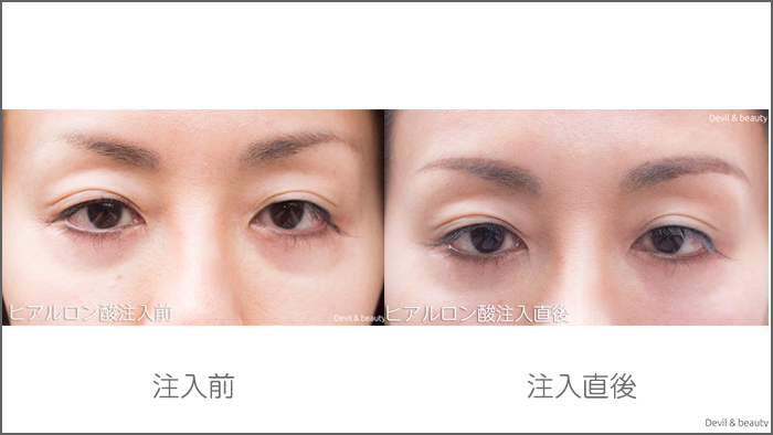 hyaluronic-acid-injection-under-the-eyes-before-after1 - image