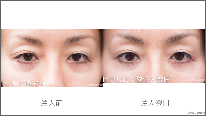 hyaluronic-acid-injection-under-the-eyes-before-nextdays1 - image