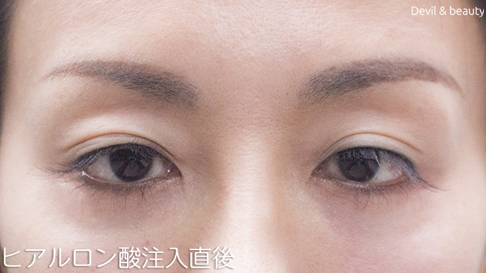 hyaluronic-acid-injection-under-the-eyes-immediately-after1 - image