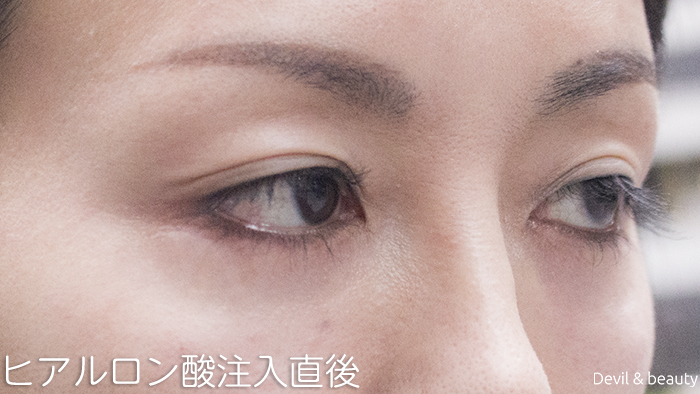hyaluronic-acid-injection-under-the-eyes-immediately-after2 - image