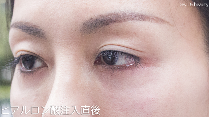 hyaluronic-acid-injection-under-the-eyes-immediately-after3 - image