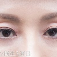 hyaluronic-acid-injection-under-the-eyes-nextdays1-200x200 - image