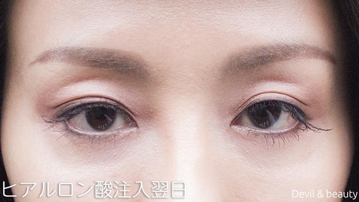 hyaluronic-acid-injection-under-the-eyes-nextdays1 - image
