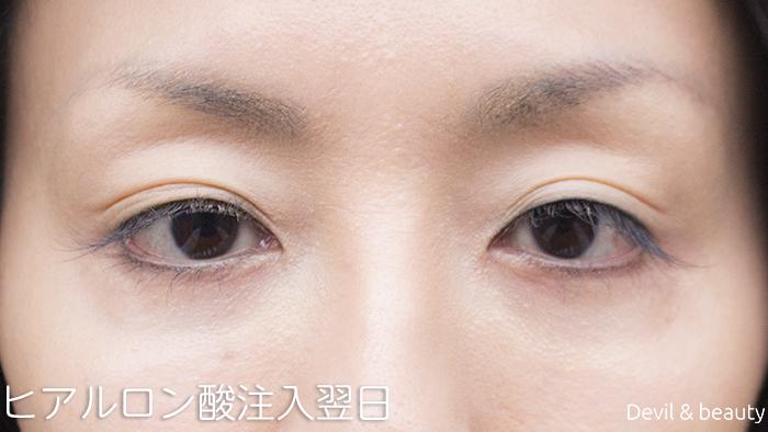 hyaluronic-acid-injection-under-the-eyes-nextdays2 - image