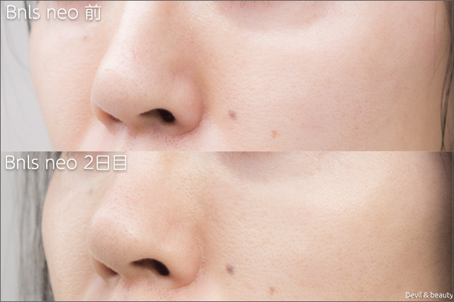 before-after-bnls-neo-1st-nose-2th-day-left - image