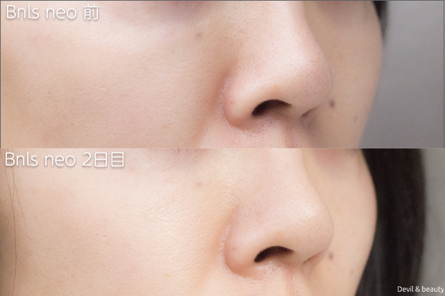 before-after-bnls-neo-1st-nose-2th-day-right - image