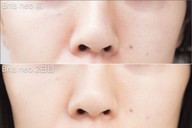before-after-bnls-neo-1st-nose-2th-day - image
