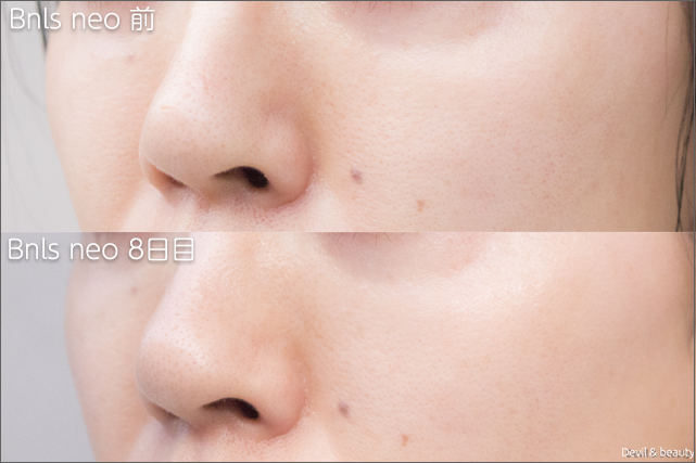 before-after-bnls-neo-1st-nose-day8-left - image
