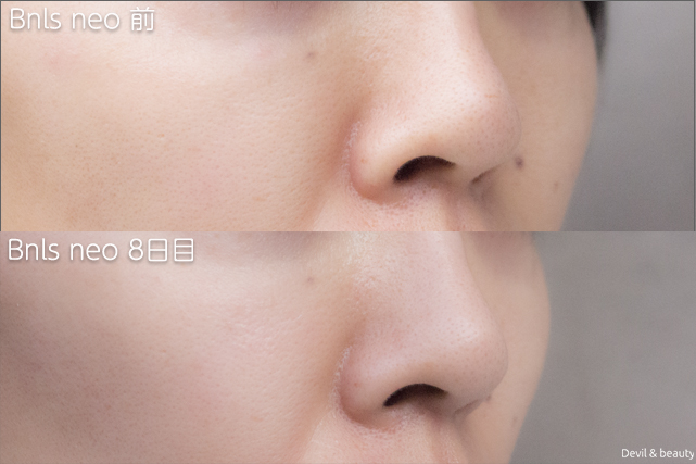 before-after-bnls-neo-1st-nose-day8-right - image