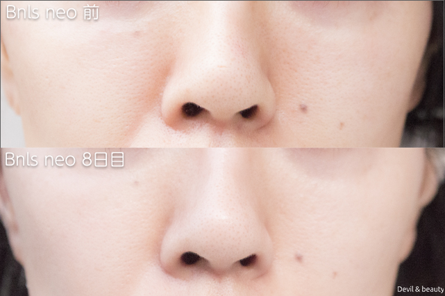 before-after-bnls-neo-1st-nose-day8 - image