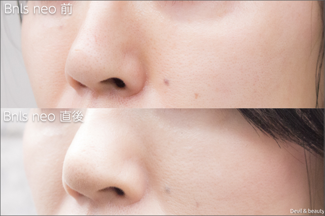 before-after-bnls-neo-1st-nose-the-day-left - image