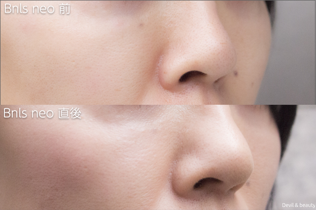 before-after-bnls-neo-1st-nose-the-day-right - image