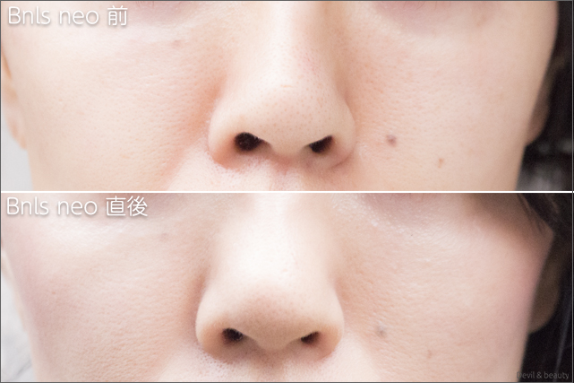 before-after-bnls-neo-1st-nose-the-day - image