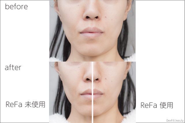 before-after-refa-s-carat-ray - image