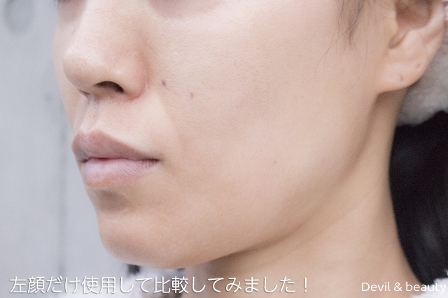 before-use-refa-s-carat-ray2 - image