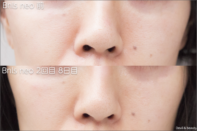 before-after-bnls-neo-2nd-nose1 - image