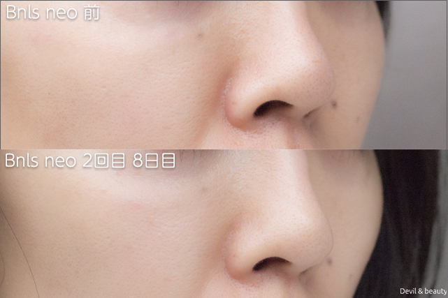 before-after-bnls-neo-2nd-nose2 - image