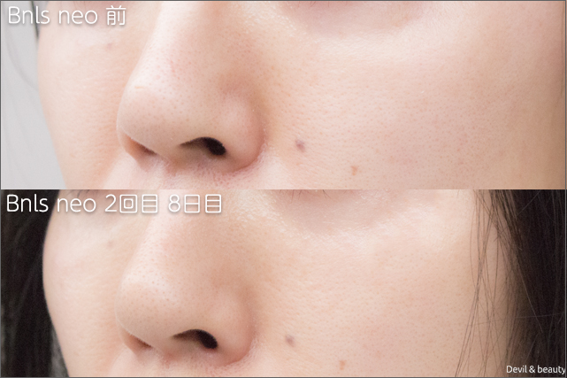before-after-bnls-neo-2nd-nose3 - image