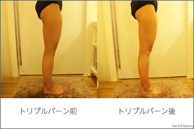 before-after-miss-paris-diet-center-triple-burns-z-body2 - image