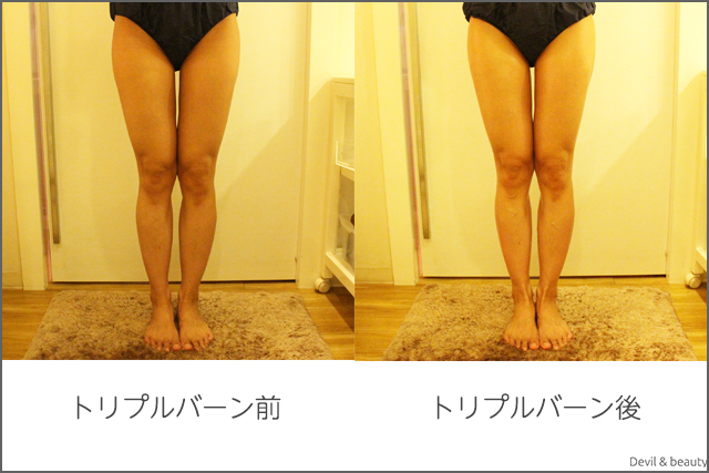 before-after-miss-paris-diet-center-triple-burns-z-body3 - image
